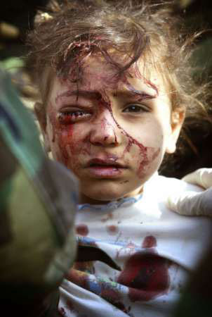 Iraqi_child_injured
